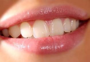 Smile, Routine Dental Cleanings in Garland, TX